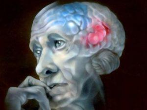 Нарушение циркадных ритмов связали с болезнью Паркинсона