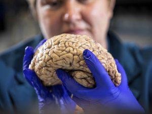 Болезнь Альцгеймера: открытие нового гена привело к самым ранним изменениям мозга