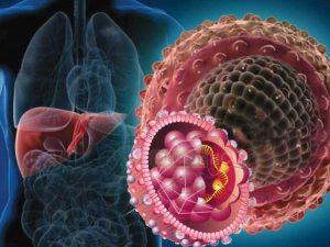 Хронические вирусные гепатиты. Пути заражения, стадии, клиника, лечение, прогноз.
