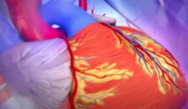 Названы опасные симптомы скрытого инфаркта