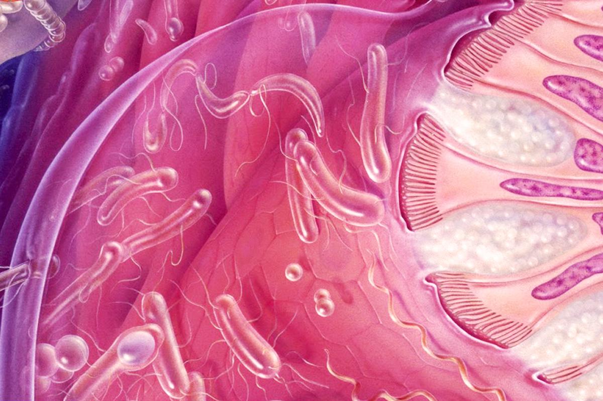 Бактериальный вагиноз, что это и как с этим бороться?