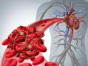 Обнаружено спасение от негативных последствий сердечного приступа