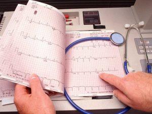 Натуральные средства, которые помогут при аритмии сердца