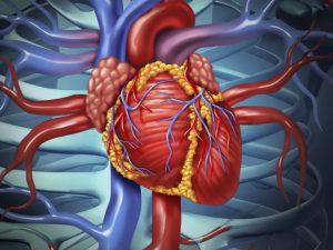 Как предотвратить сердечно-сосудистые заболевания и инсульт