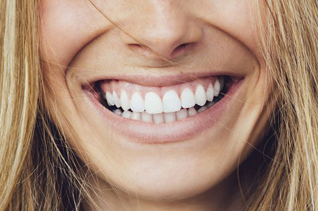 Виниры: мода на улыбку