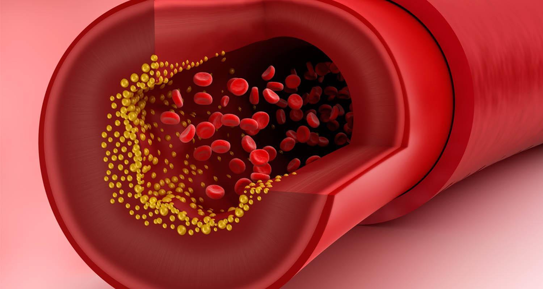 Кардиологи назвали три снижающих холестерин продукта