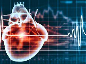 Как распознать инфаркт в самом начале