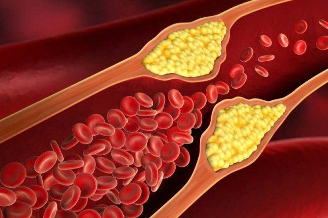 Исследователи разобрались в истинной природе развития атеросклероза