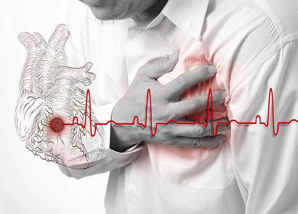 Больное сердце: симптомы, которые сигналят о разных сердечных патологиях