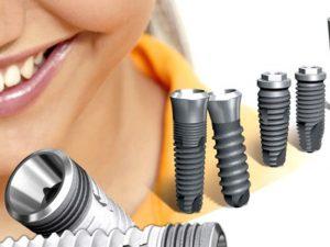 Особенности проведения процедуры по имплантации зубов