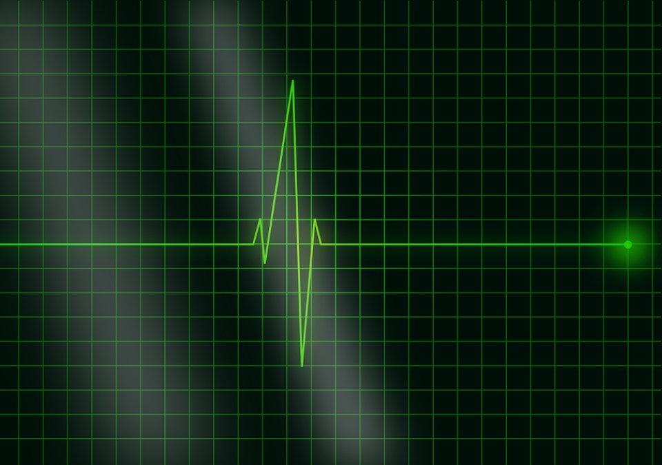 В РФ обнаружили генетические признаки внезапной остановки сердца